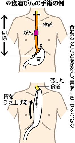 食道がん 胸腔鏡手術7割…肋骨切らず 術後の痛み軽減