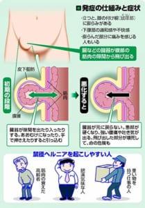 鼠径ヘルニア…悪化で腹痛や吐き気
