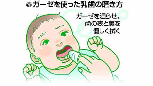 口の中の健康(3)3歳まで授乳 前歯溶け…卒乳できない子に重度むし歯リスク