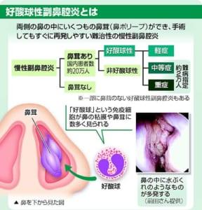 好酸球性副鼻腔炎…鼻にポリープ 嗅覚障害