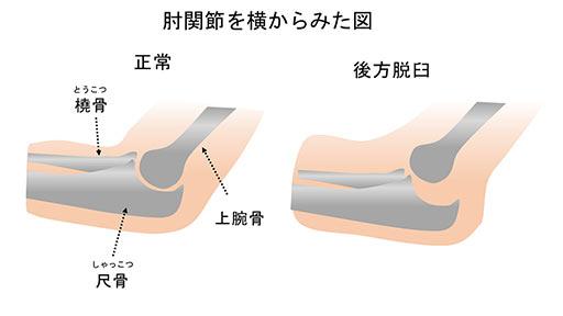 """""""肘の脱臼は、整復されればいいわけではない"""" はロックされています。 肘の脱臼は、整復されればいいわけではない"""