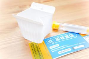 術前尿検査、10件中9件が不要 米・保険請求データ1,300万件超で検討