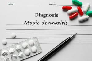外用薬+JAK阻害薬で中~重症アトピー改善 第III相RCTでアブロシチニブの有効性を検討