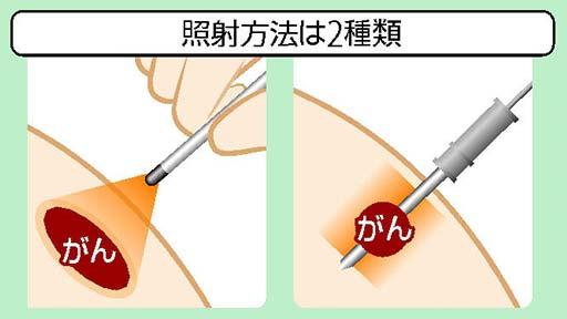 顔や首のがんに光免疫療法…レーザーで狙い撃ち 根治の可能性も