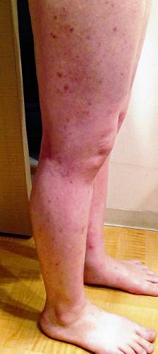 アトピー性皮膚炎<2>食物アレルギー改善にも