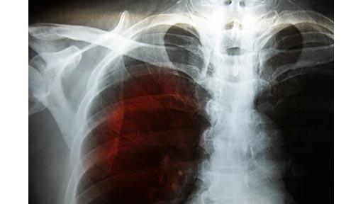 新型コロナ感染症、肺炎で死ぬのは苦しいのか?
