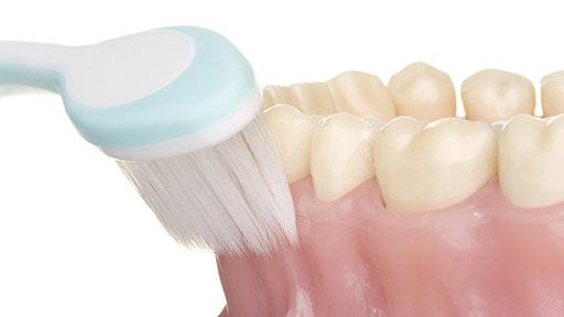 4種の口腔細菌が大腸がんに関与 唾液検査でリスク予測・予防の可能性