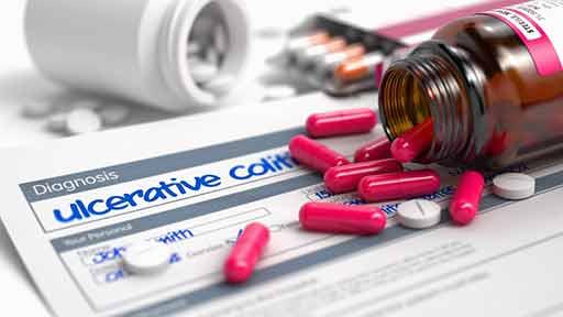 潰瘍性大腸炎に新規経口薬ozanimodが有効 米・多施設共同第III相RCT