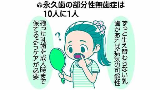 口の中の健康(9)無歯症の乳歯 成人まで保って