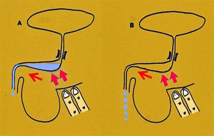 コーヒーやお茶で頻尿になる場合の原因や対処法