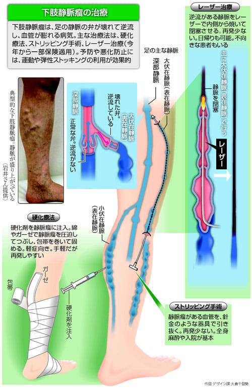 瘤 手術 失敗 下肢 静脈