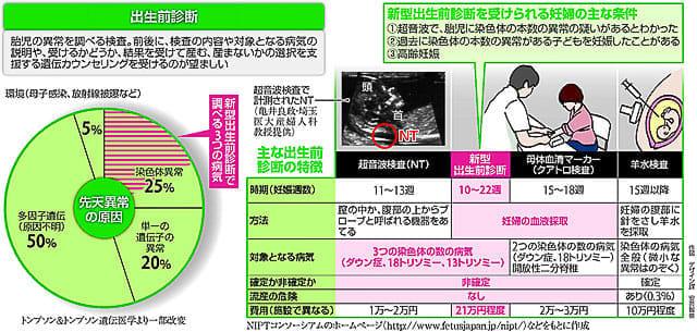 出生前診断…まず「超音波」 専門外来で : yomiDr./ヨミドクター(読売 ...