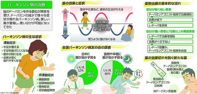 パーキンソン病 : yomiDr. / ヨ...