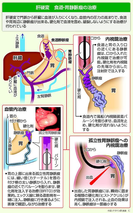 瘤 食道 症状 静脈 【医師監修】食道静脈瘤破裂の予兆って?硬化療法とはどんな治療法なの?