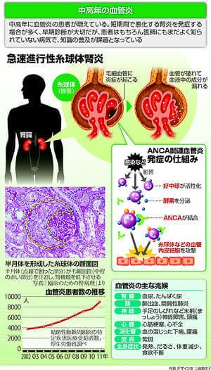 中高年の血管炎…診断遅れると腎炎悪化 : yomiDr./ヨミドクター(読売新聞)