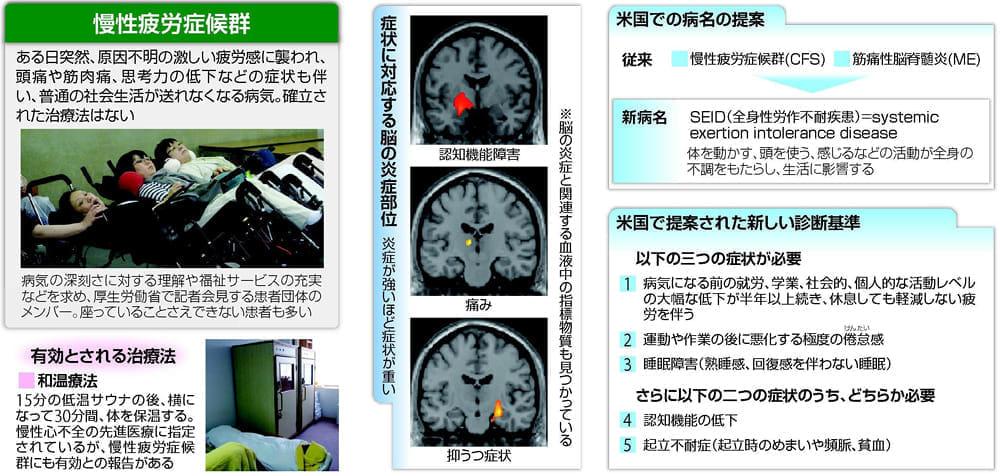 20150618慢性疲労症候群 脳の炎症も関係…客観的な診断法に期待L