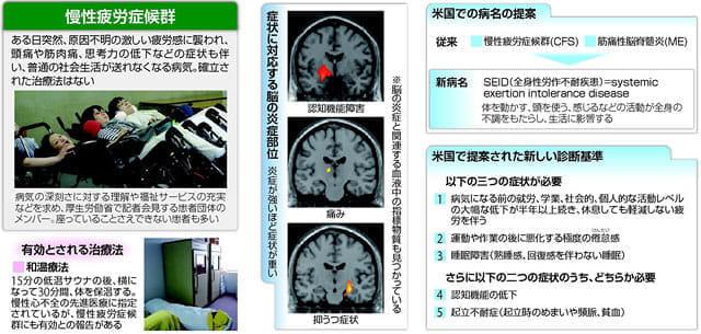 20150618慢性疲労症候群 脳の炎症も関係…客観的な診断法に期待M