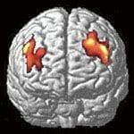 赤い部分が、萎縮した前頭前野。疲労は脳にここまでの影響を与える